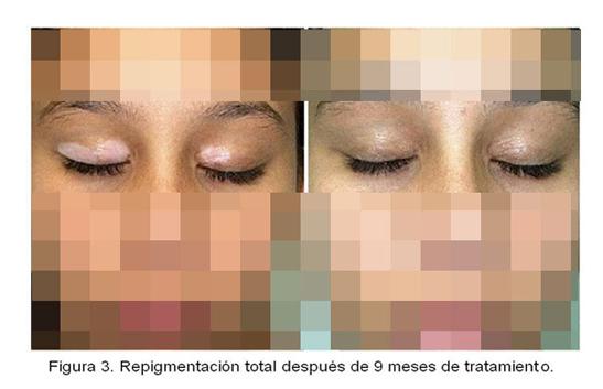 Melagenina Cuba dùng chữa bạch tạng