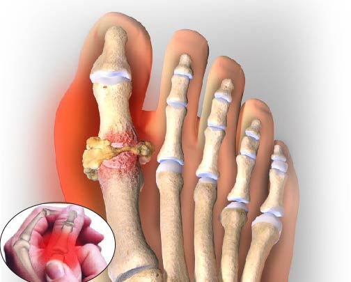Colchicina thuốc điều trị bệnh gout Cuba