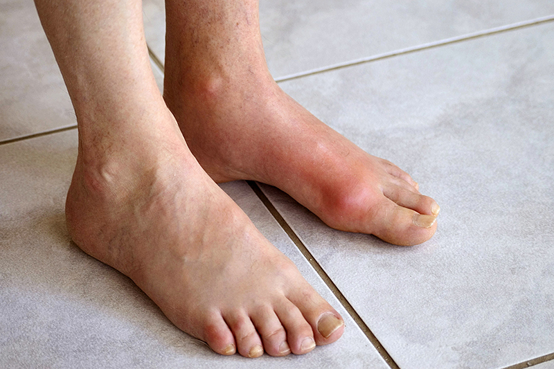 Thuốc trị bệnh gout của cuba