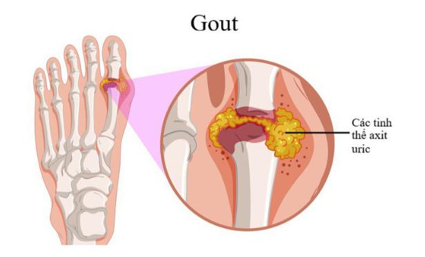 Thuốc trị bệnh gout Cuba Colchicina